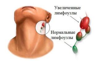Воспаление лимфоузлов на шее: фото, причины и лечение патологии, что делать?