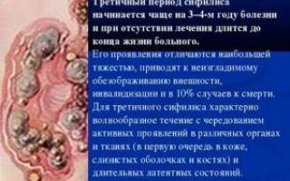 Третичный сифилис: признаки и лечение третичного периода