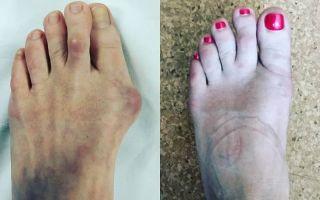 Косточка на большом пальце ноги: лечение в домашних условиях и операция, что делать, если болит и растет?