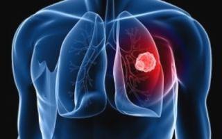 Туберкулез у взрослых: симптомы и первые признаки патологии, лечение заболевания