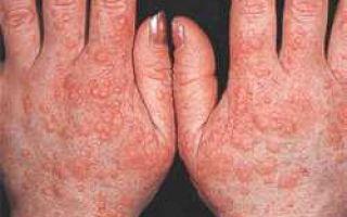 Аллергия на холод: симптомы, лечение аллергии на руках, лице
