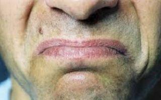 Металлический привкус во рту: причины неприятных ощущений у женщин и мужчин