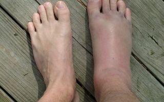 Почему отекают ноги в щиколотках у женщин — 10 причин и лечение патологии, профилактические мероприятия