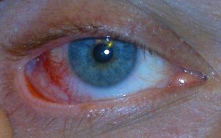 Внутриглазное давление: норма и симптомы повышенного и пониженного показателя