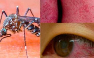 Вирус Зика: что это такое, как передается, симптомы