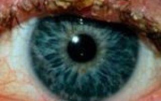 Блефарит: симптомы и причины патологии, фото и как лечить заболевание век у взрослых?