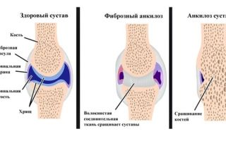 Контрактубекс: инструкция по применению, аналоги геля от шрамов и рубцов
