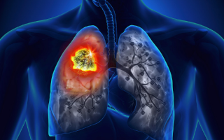 Стадии рака легких: сколько живут и этапы заболевания, международная классификация
