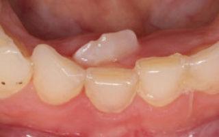 Прорезывание зубов у детей: симптомы процесса, порядок и сроки в таблице, последовательность