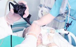 Черный кал: причины у взрослого, что это значит и лечение возможных заболеваний