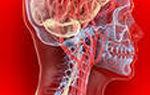 Внутричерепное давление: симптомы и лечение повышенного ВД у взрослых