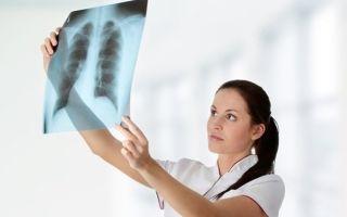 Туберкулез костей и суставов: симптомы и первые признаки, лечение