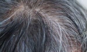 5 причин по которым рано седеют волосы на лобке: возможные заболевания и особенности патологии