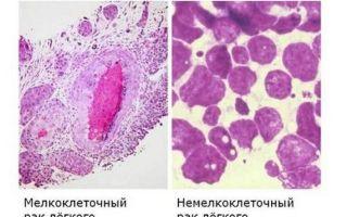 Диагностика рака легких, как специалисты определяют патологию?