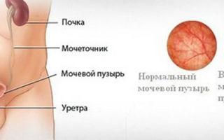 Жжение при мочеиспускании у мужчин: причины и лечение патологии, что делать с болезнью?