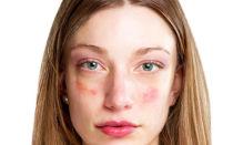 Красные пятна появились на лице чешутся и шелушатся: фото, причины, методы лечения
