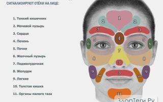 Отек лица: причины, что делать и почему ухудшается по утрам, как снять?