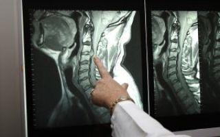 Головная боль в области висков и лба, тошнота: причины и лечение возможных заболеваний