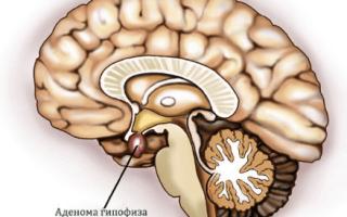 Акромегалия: причины, симптомы и лечение заболевания