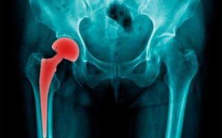 Перелом шейки бедра у пожилых людей: причины и симптомы патологии, способы лечения и прогноз