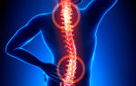 Гемангиома: фото, симптомы, методы лечения