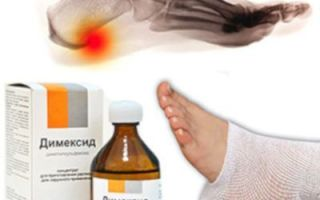 Болит пятка и больно наступать: причины развития заболевания и как лечить болезнь