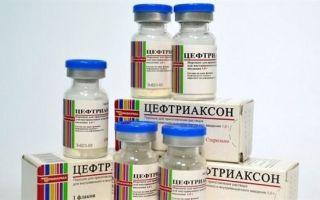 Бронхит: симптомы и лечение у взрослых, использование антибиотиков и признаки болезни