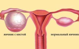 Киста яичника: симптомы и причины патологии, факторы риска и лечебные мероприятия