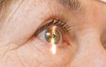 Полудан: инструкция по применению, аналоги глазных капель, цена и отзывы
