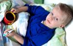 Краснуха: фото и симптомы патологии, лечение и профилактика заболевания