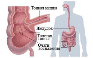 Болезнь Крона: фото, причины, симптомы и лечение у взрослых