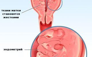 Аденомиоз матки: особенности лечения патологии, возможна ли беременность при заболевании?
