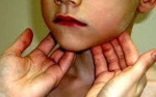 Увеличены подчелюстные лимфоузлы: причины, лечение воспаления