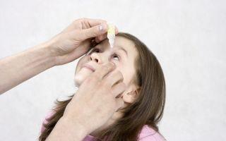Коньюктивит у детей: фото, симптомы, эффективные методы лечения