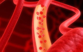 Гематокрит повышен у взрослого, о чем это говорит: причины повышения показателя и варианты нормы