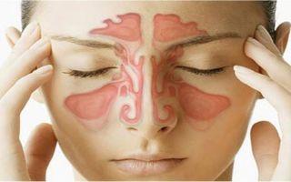 Головная боль в области глаз и лба: причины, лечение