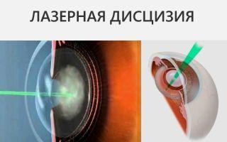 Катаракта: причины и симптомы патологии болезни, лечение и профилактика, операция по удалению