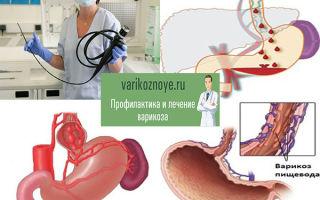 Варикозное расширение вен пищевода: лечение и причины возникновения патологии, особенности диагностики болезни