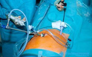 Фолликулярная киста яичника (правого, левого): лечение патологии, причины и симптомы заболевания