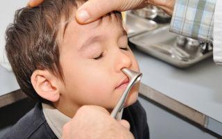 Кровь из носа: лечение и почему у ребенка частые носовые кровотечения?