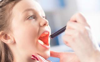 Красное горло у ребенка: причины, чем лечить в домашних условиях