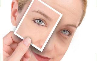 Отеки под глазами: причины, лечение, как убрать в домашних условиях