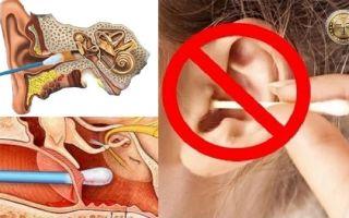 Отипакс: инструкция по применению, цена в аптеке и отзывы покупателей, аналоги ушных капель