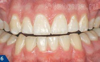 Пришеечный кариес: причины и лечение патологии зубов