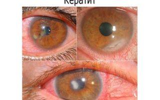 Корнерегель: инструкция по применению, аналоги глазного геля и капель, цена в аптеке