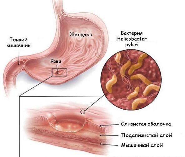 Пониженная кислотность желудка: симптомы, лечение
