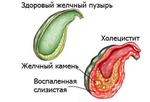 Холецистит у взрослых: симптомы, лечение, хронический холецистит у взрослых