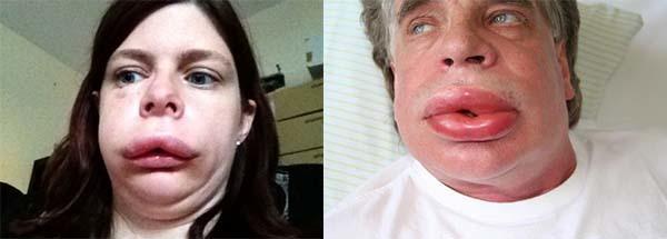 Отек горла: симптомы, лечение. Как снять отек горла