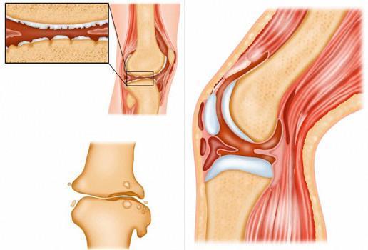 Туберкулез костей и суставов: симптомы, первые признаки, лечение