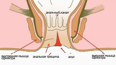 Трещины в заднем проходе: симптомы, лечение. Как лечить трещину в заднем проходе в домашних условиях